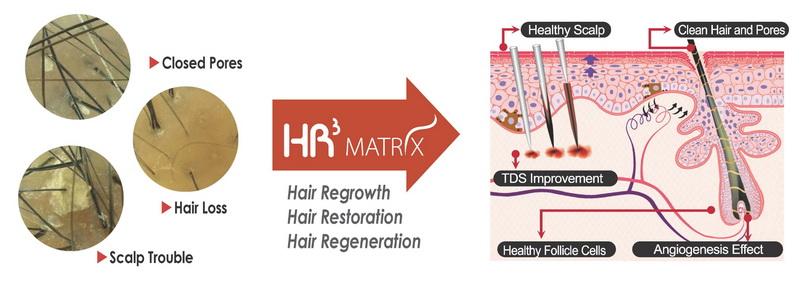 Hr3 matrix 1